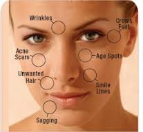 Peels: Skin rejuvenation
